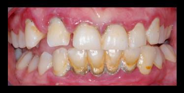 Caso Higiene Oral - White Clinic