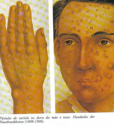 varíola.bmp